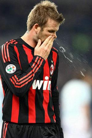 Beckham-Snot